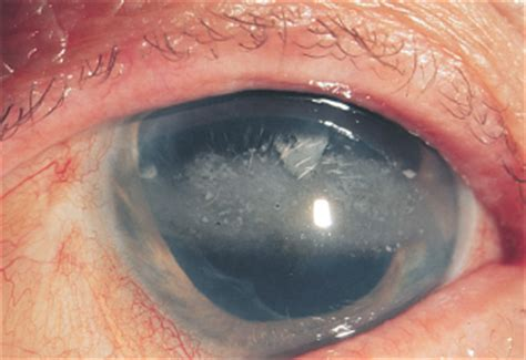 4 Intraocular Inflammation and Uveitis | Ento Key