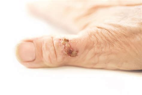 Rheumatoid nodules: Symptoms, causes, and pictures