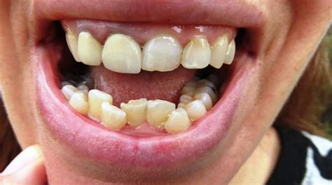 Crooked Teeth: Causes & Treatments | Health Digest