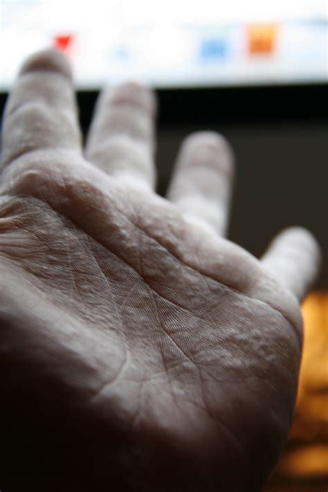 Blisters on Hands and feet in Adults (Dyshidrotic Eczema