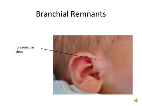 Branchial Remnants and Branchial Cyst